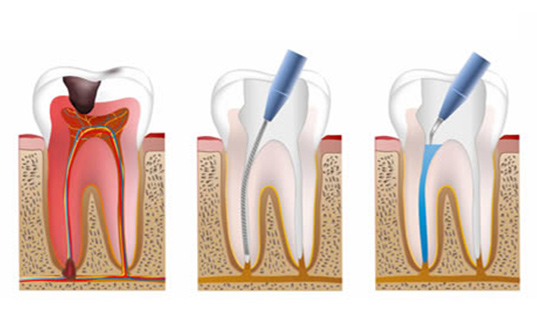 Endodontics in Sunningdale | Root Canal Treatment